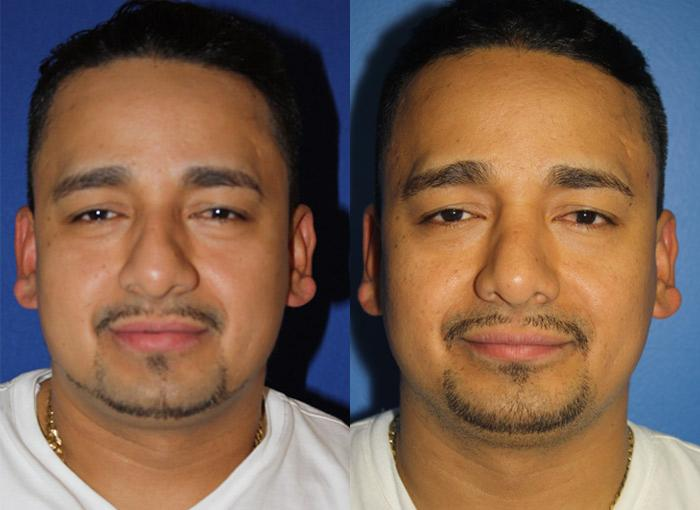 patient-2437-rhinoplasty-before-after