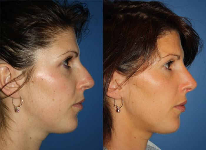 patient-2442-rhinoplasty-before-after-1