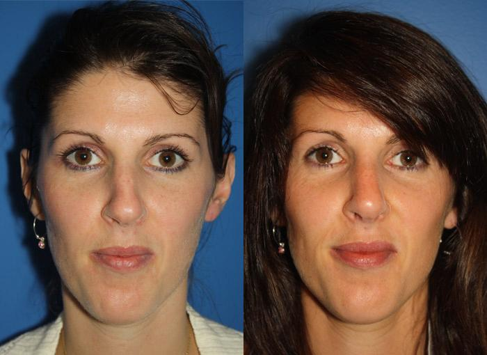 patient-2442-rhinoplasty-before-after