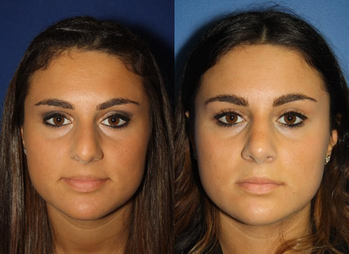patient-2448-rhinoplasty-before-after