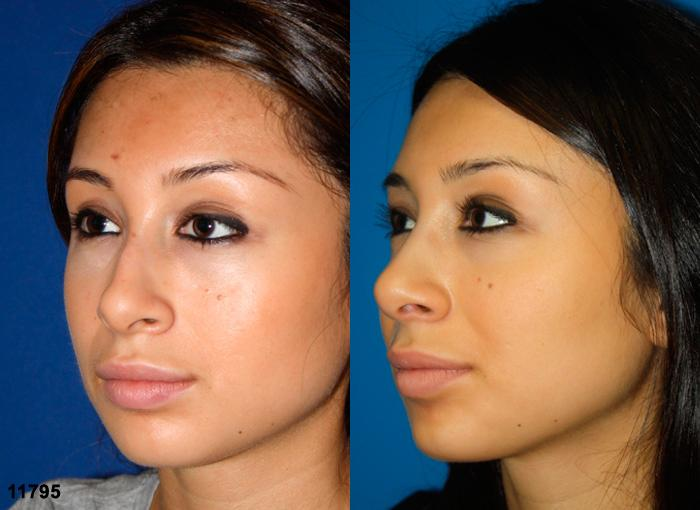 patient-2453-rhinoplasty-before-after-1
