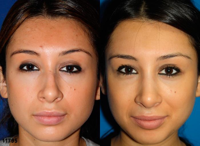 patient-2453-rhinoplasty-before-after