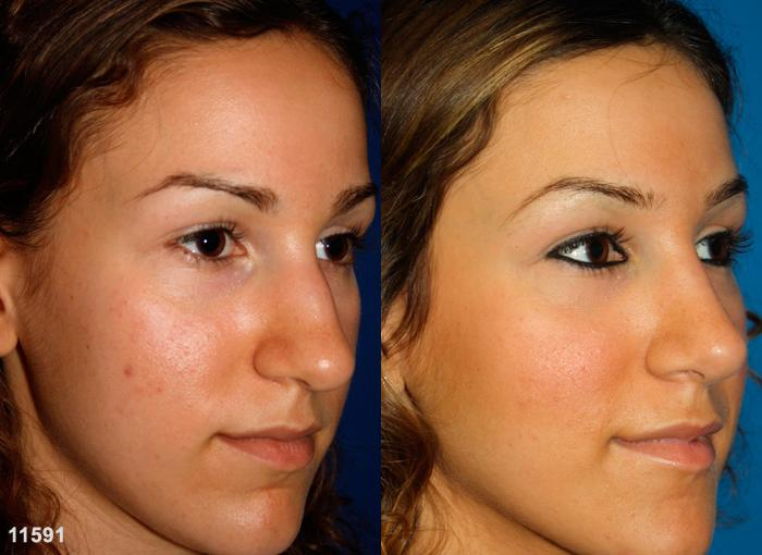 patient-2463-rhinoplasty-before-after-1