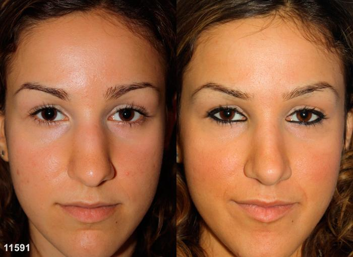 patient-2463-rhinoplasty-before-after