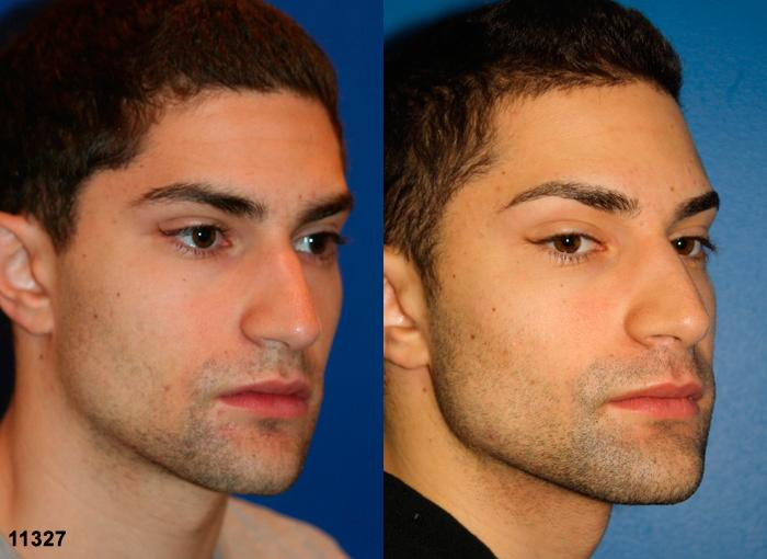patient-2470-rhinoplasty-before-after-1