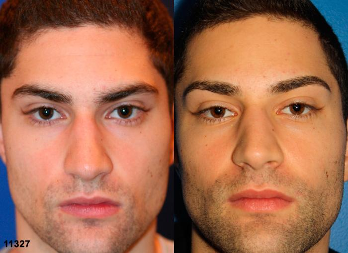 patient-2470-rhinoplasty-before-after