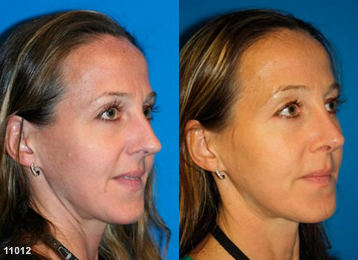 patient-2478-rhinoplasty-before-after-1