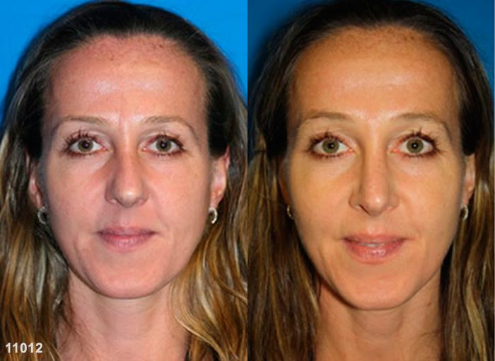 patient-2478-rhinoplasty-before-after