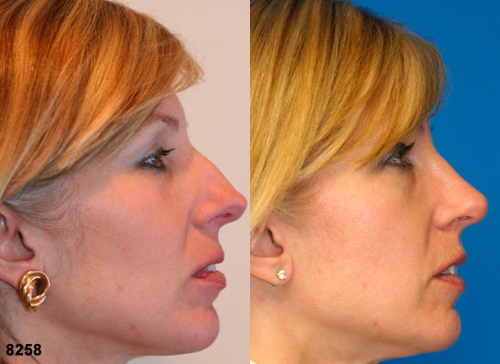 patient-2485-rhinoplasty-before-after-1