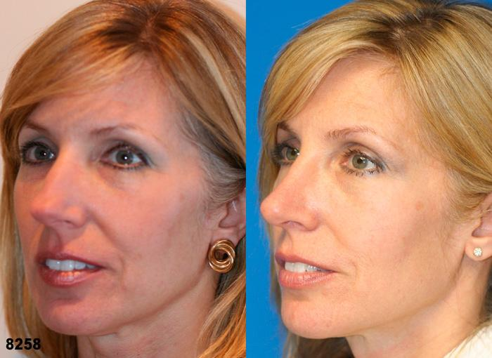 patient-2485-rhinoplasty-before-after