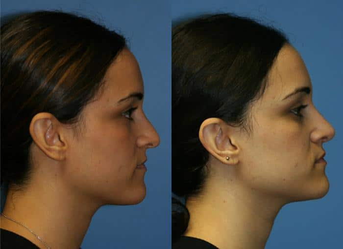 patient-2490-rhinoplasty-before-after-1