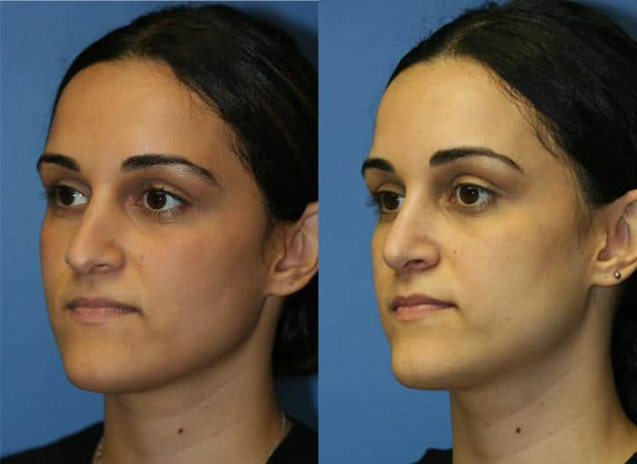 patient-2490-rhinoplasty-before-after