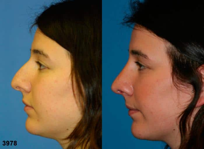 patient-2495-rhinoplasty-before-after-1