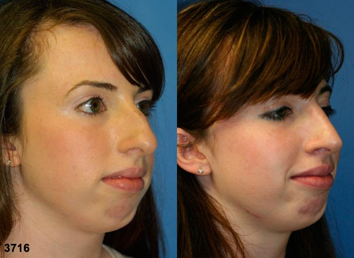 patient-2500-rhinoplasty-before-after-1