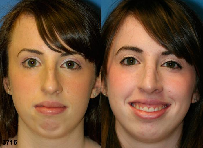 patient-2500-rhinoplasty-before-after