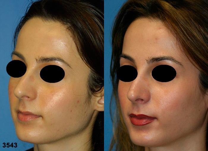patient-2507-rhinoplasty-before-after-1