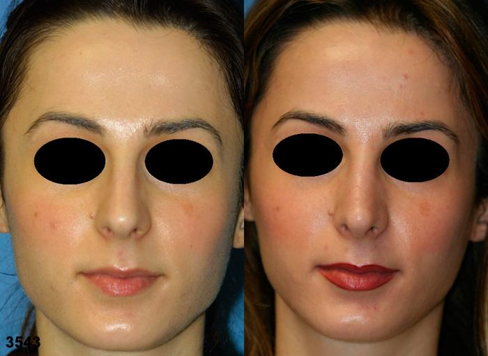 patient-2507-rhinoplasty-before-after