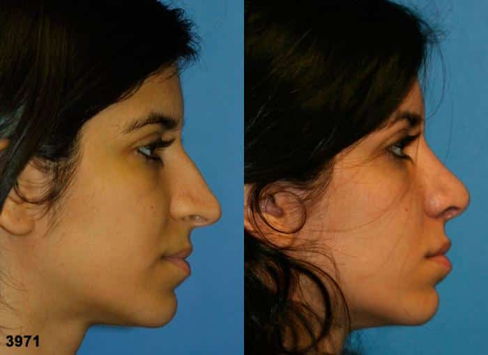 patient-2515-rhinoplasty-before-after-1
