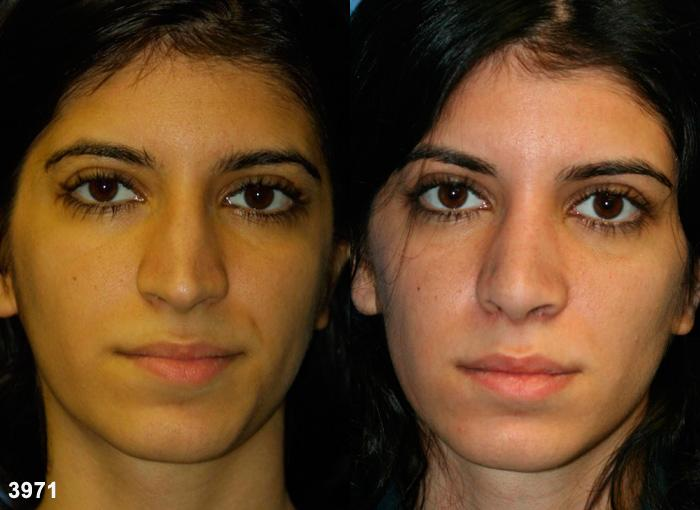 patient-2515-rhinoplasty-before-after