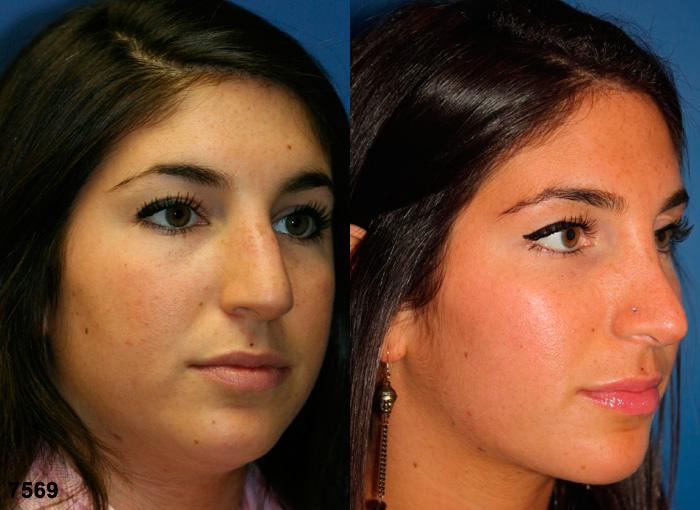 patient-2522-rhinoplasty-before-after-1
