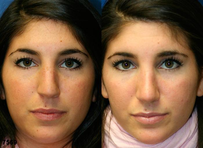 patient-2522-rhinoplasty-before-after