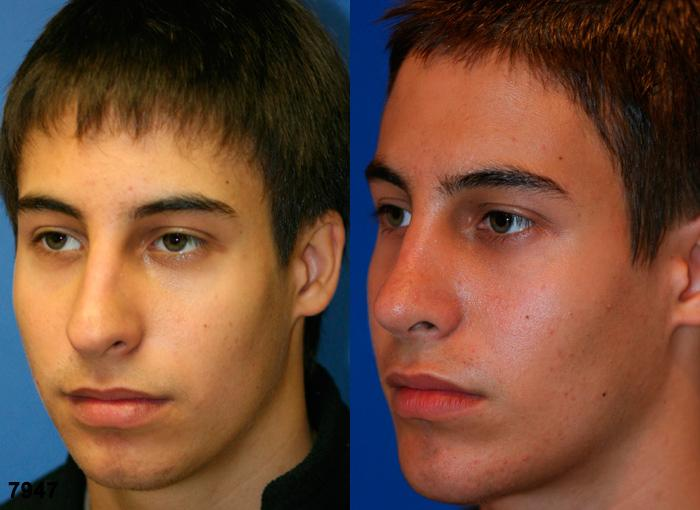 patient-2529-rhinoplasty-before-after-1