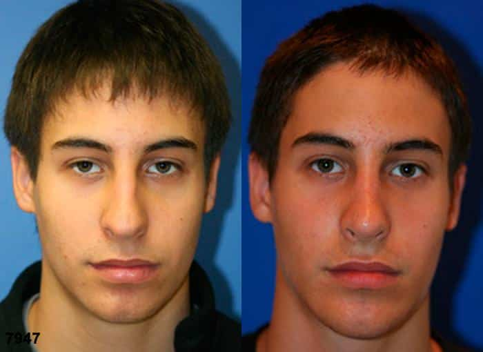 patient-2529-rhinoplasty-before-after