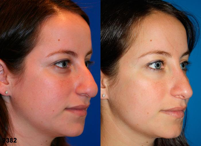 patient-2538-rhinoplasty-before-after-1