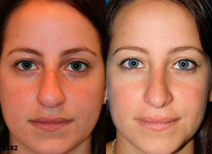 patient-2538-rhinoplasty-before-after