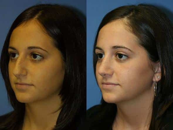 patient-2545-rhinoplasty-before-after-1