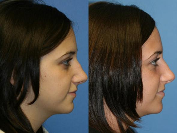 patient-2545-rhinoplasty-before-after