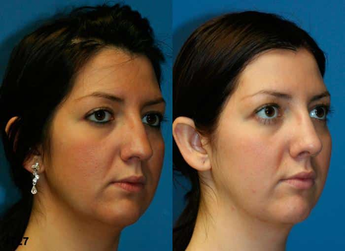 patient-2550-rhinoplasty-before-after-1