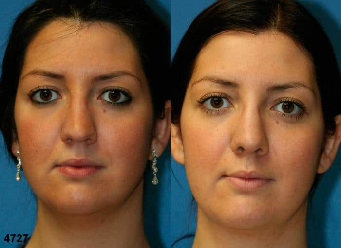 patient-2550-rhinoplasty-before-after