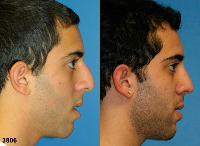 patient-2557-rhinoplasty-before-aft
