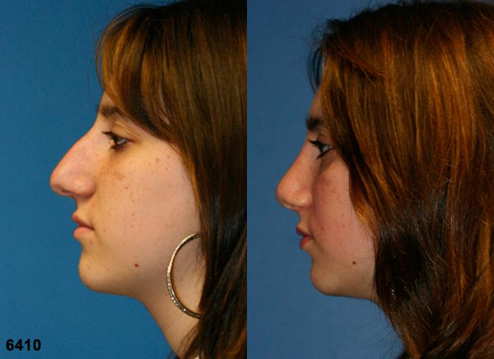patient-2567-rhinoplasty-before-after-1