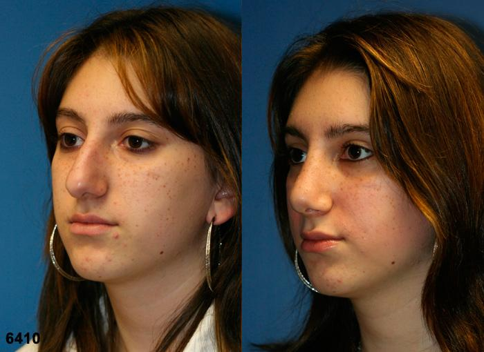 patient-2567-rhinoplasty-before-after