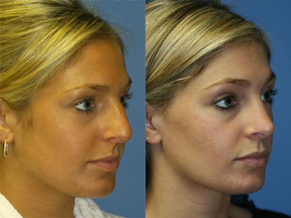 patient-2572-rhinoplasty-before-after-1