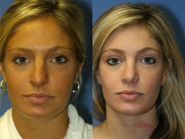 patient-2572-rhinoplasty-before-after
