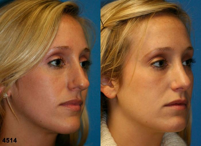 patient-2579-rhinoplasty-before-after-1