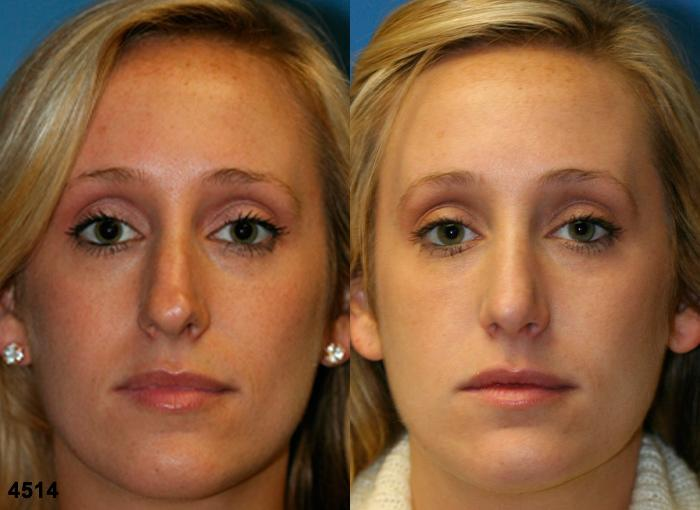 patient-2579-rhinoplasty-before-after