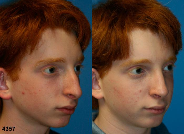 patient-2586-rhinoplasty-before-after-1