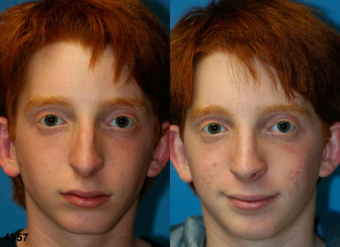 patient-2586-rhinoplasty-before-after