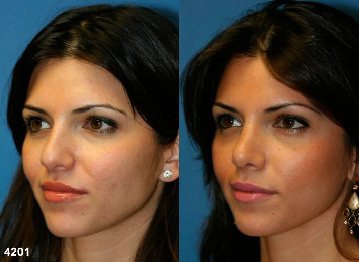 patient-2593-rhinoplasty-before-after-1