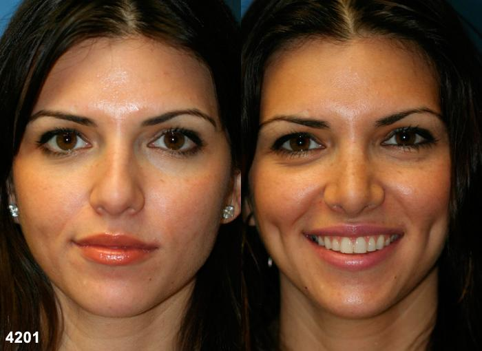 patient-2593-rhinoplasty-before-after