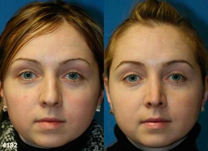patient-2600-rhinoplasty-before-after
