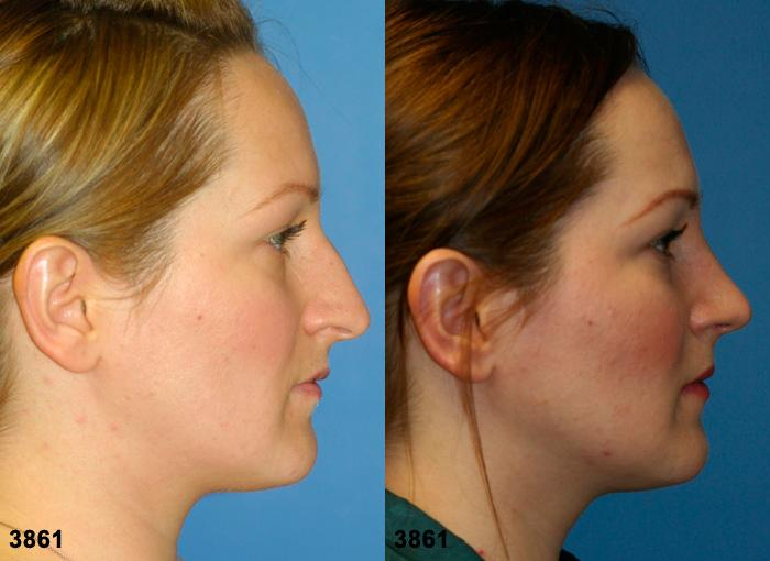 patient-2607-rhinoplasty-before-after-1