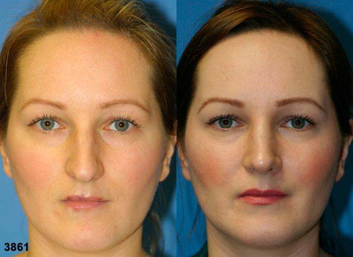patient-2607-rhinoplasty-before-after
