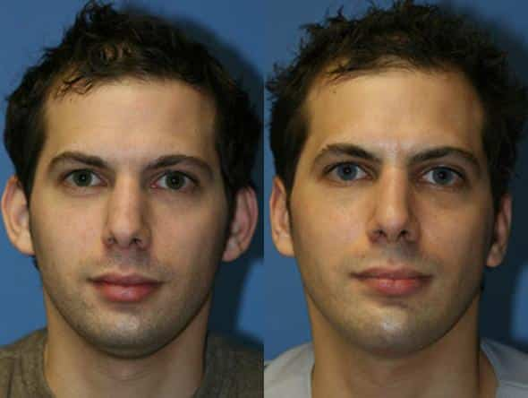 patient-2616-rhinoplasty-before-after