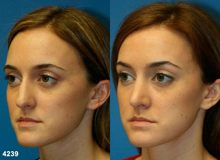 patient-2623-rhinoplasty-before-after-1