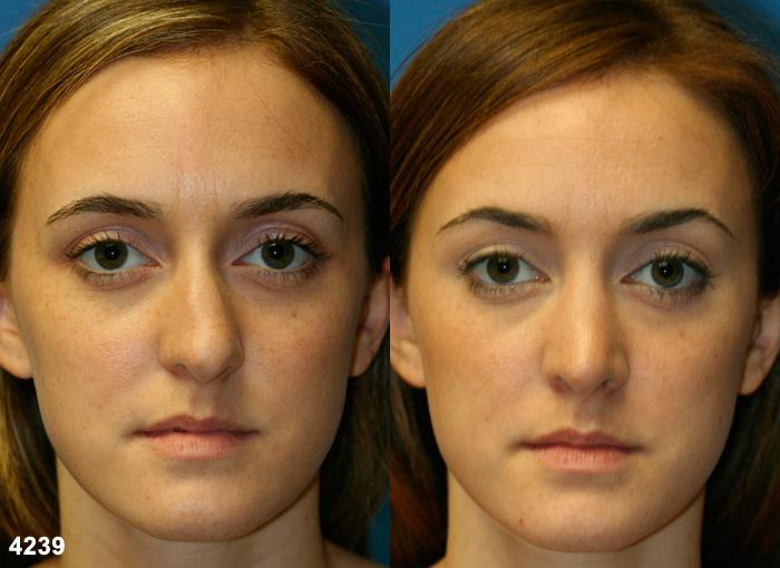 patient-2623-rhinoplasty-before-after